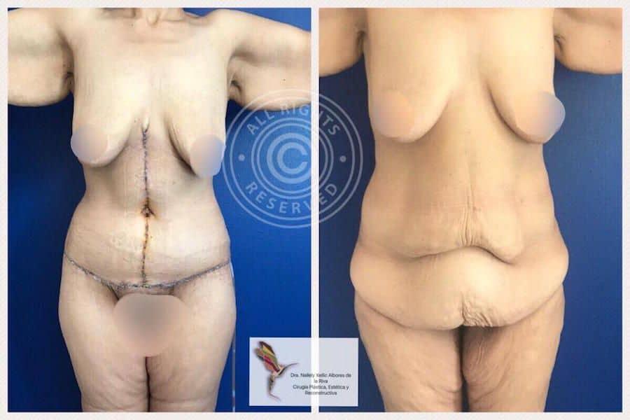 Cirujano-Plastico-Especialista-en-Cirugia-Post-Bariatrica-Abdominoplastia-en-CDMX-v002-compressor