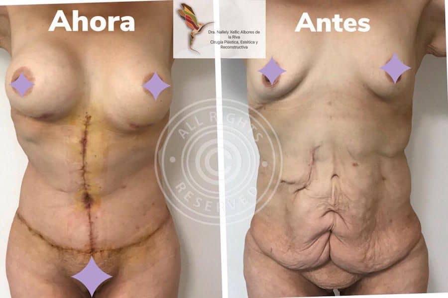Cirujano-Plastico-Especialista-en-Cirugia-Post-Bariatrica-Abdominoplastia-en-CDMX-v003-compressor