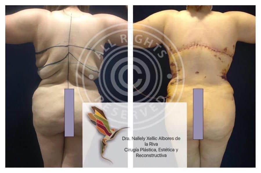 Cirujano-Plastico-Especialista-en-Cirugia-Post-Bariatrica-en-CDMX-v001-compressor