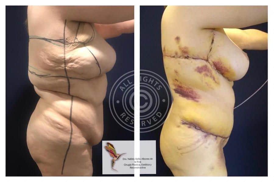 Cirujano-Plastico-Especialista-en-Cirugia-Post-Bariatrica-en-CDMX-v002-compressor