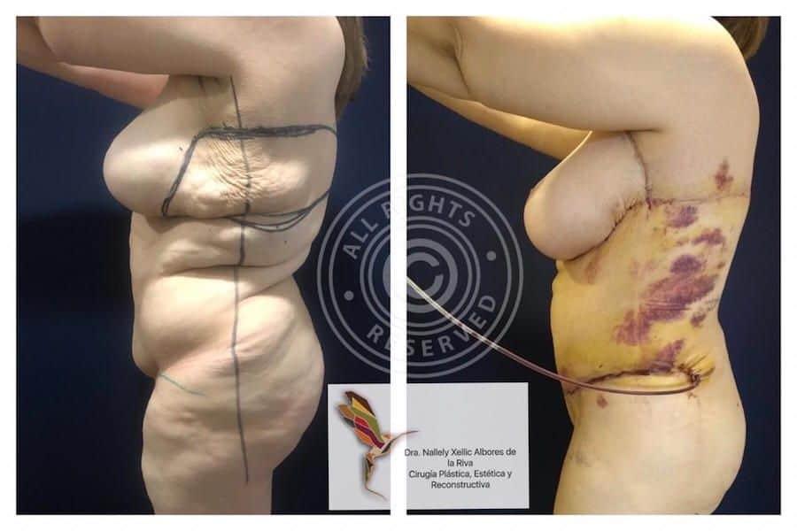 Cirujano-Plastico-Especialista-en-Cirugia-Post-Bariatrica-en-CDMX-v003-compressor