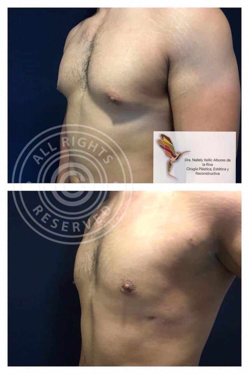 Cirujano-Plastico-Especialista-en-Ginecomastia-en-CDMX-v002-compressor