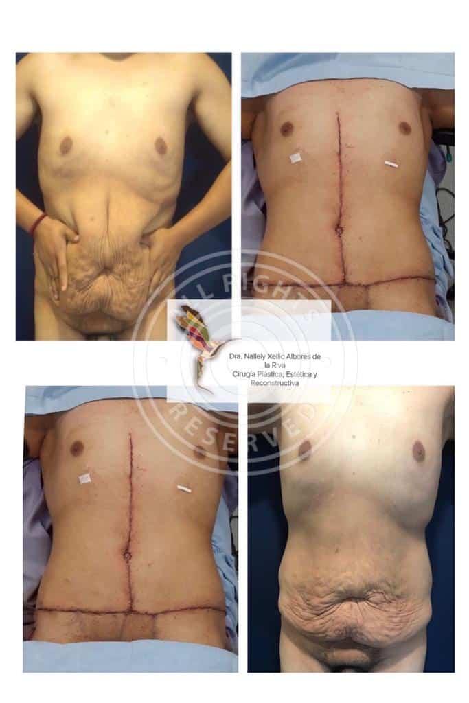Cirujano Plastico en Mexico Especialista en Cirugia Plastica Post Bariatrica v001