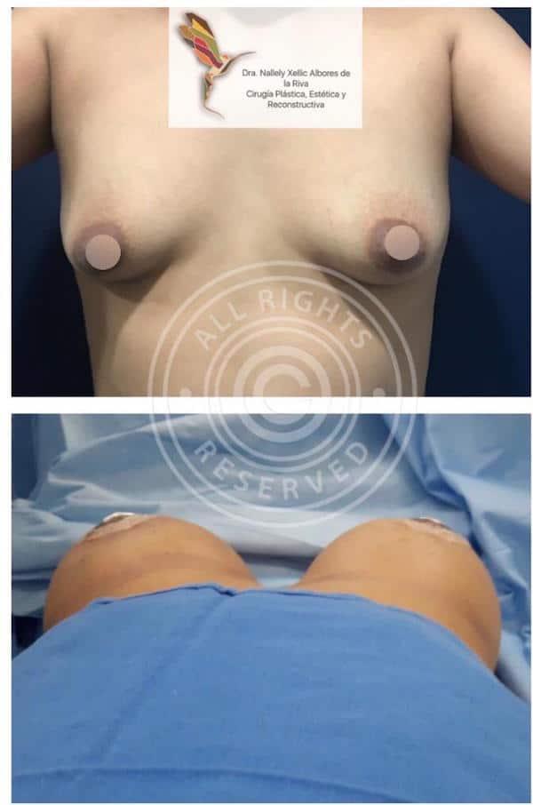 Mamoplastia Aumento Mamario con Implantes en CDMX v002